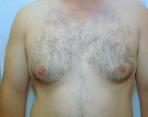 Male Breast Reduction Gallery - Patient 5951709 - Image 1