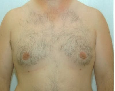 Male Breast Reduction Gallery - Patient 5951709 - Image 2