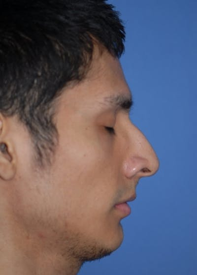 Rhinoplasty Gallery - Patient 5952002 - Image 1