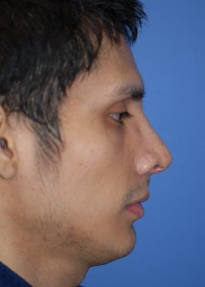 Rhinoplasty Gallery - Patient 5952002 - Image 2
