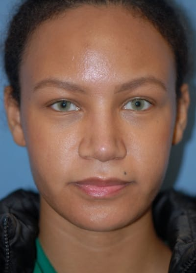 Rhinoplasty Gallery - Patient 5952152 - Image 2