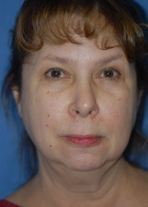 Facelift and Mini Facelift Gallery - Patient 5952109 - Image 1