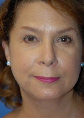 Facelift and Mini Facelift Gallery - Patient 5952109 - Image 2