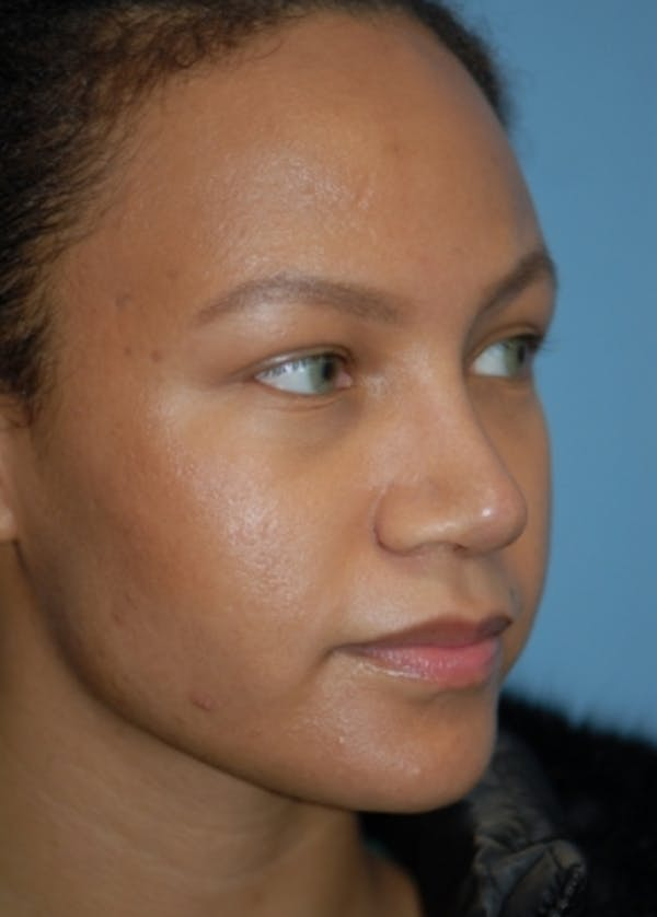 Rhinoplasty Gallery - Patient 5952152 - Image 4