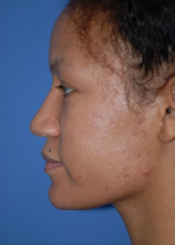 Rhinoplasty Gallery - Patient 5952152 - Image 5