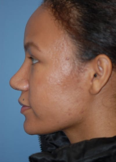 Rhinoplasty Gallery - Patient 5952152 - Image 6
