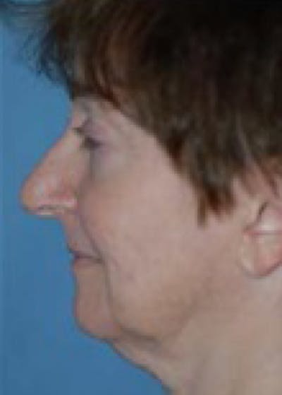 Facelift and Mini Facelift Gallery - Patient 5952158 - Image 1