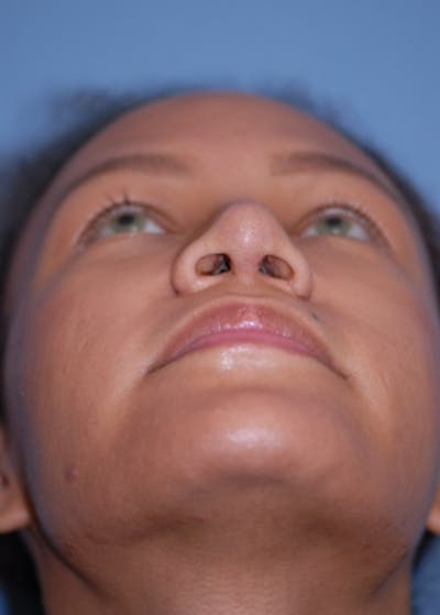 Rhinoplasty Gallery - Patient 5952152 - Image 8
