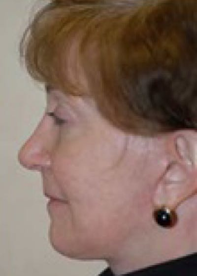 Facelift and Mini Facelift Gallery - Patient 5952158 - Image 41