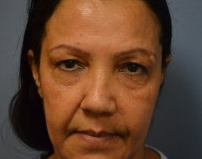 Eyelid Surgery Browlift Gallery - Patient 5952176 - Image 1