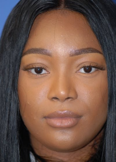Rhinoplasty Gallery - Patient 5952174 - Image 72