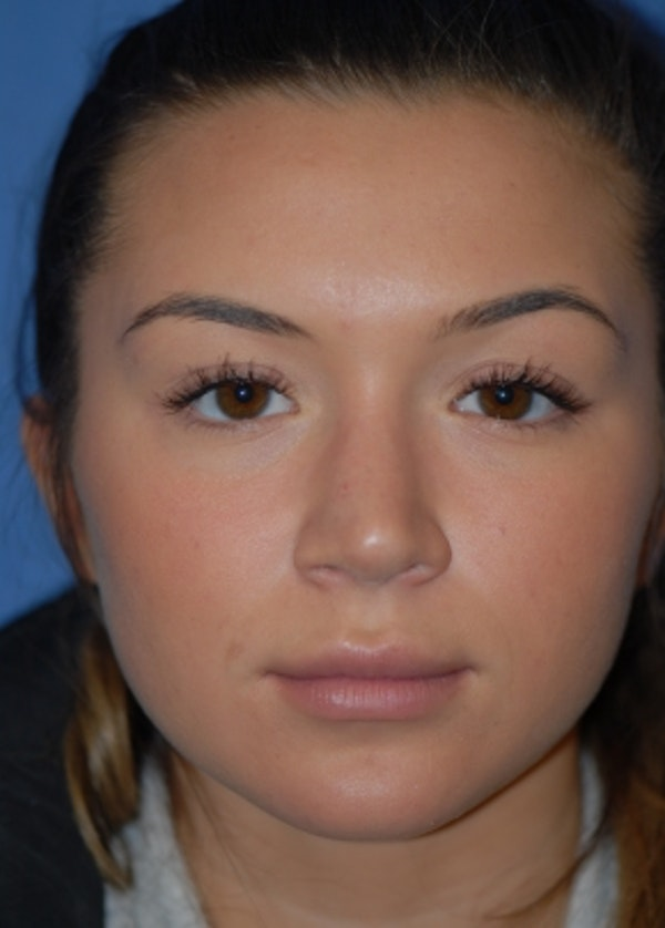 Rhinoplasty Gallery - Patient 5952183 - Image 2