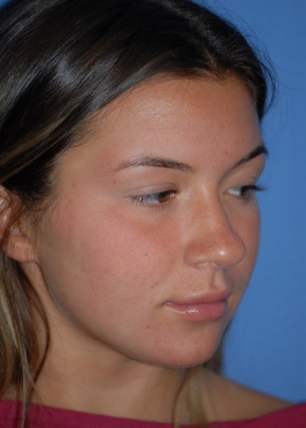 Rhinoplasty Gallery - Patient 5952183 - Image 3