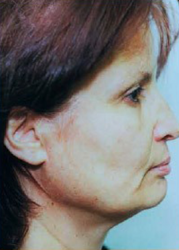 Facelift and Mini Facelift Gallery - Patient 5952180 - Image 1