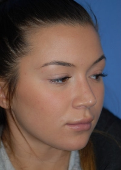 Rhinoplasty Gallery - Patient 5952183 - Image 4