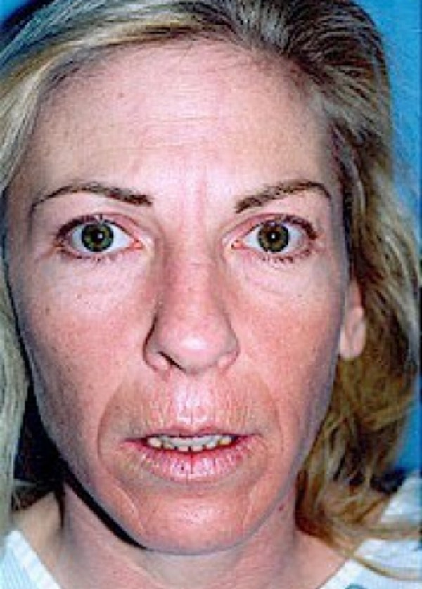 Laser Wrinkle Removal Gallery - Patient 5952182 - Image 1