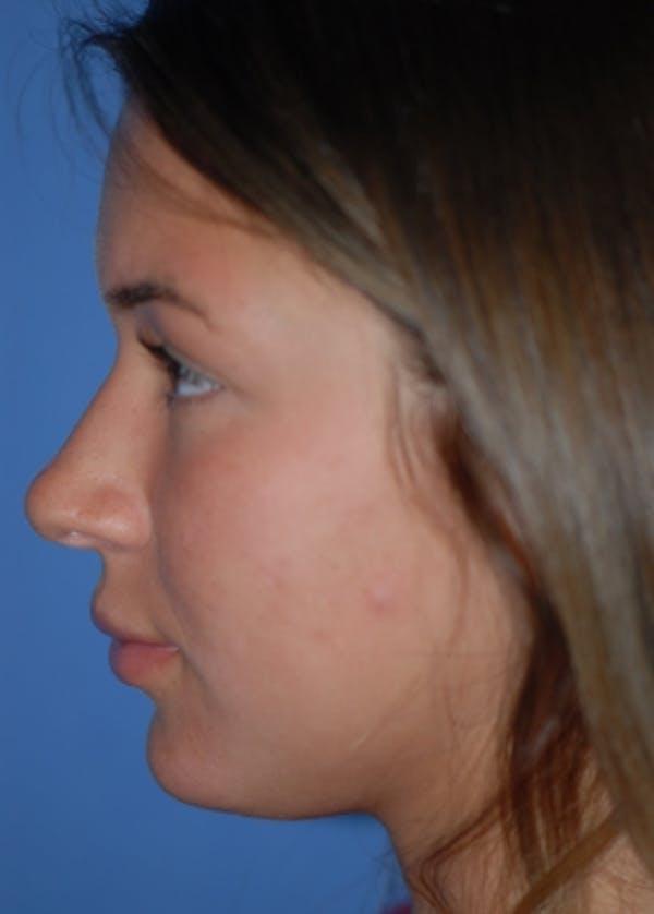 Rhinoplasty Gallery - Patient 5952183 - Image 5