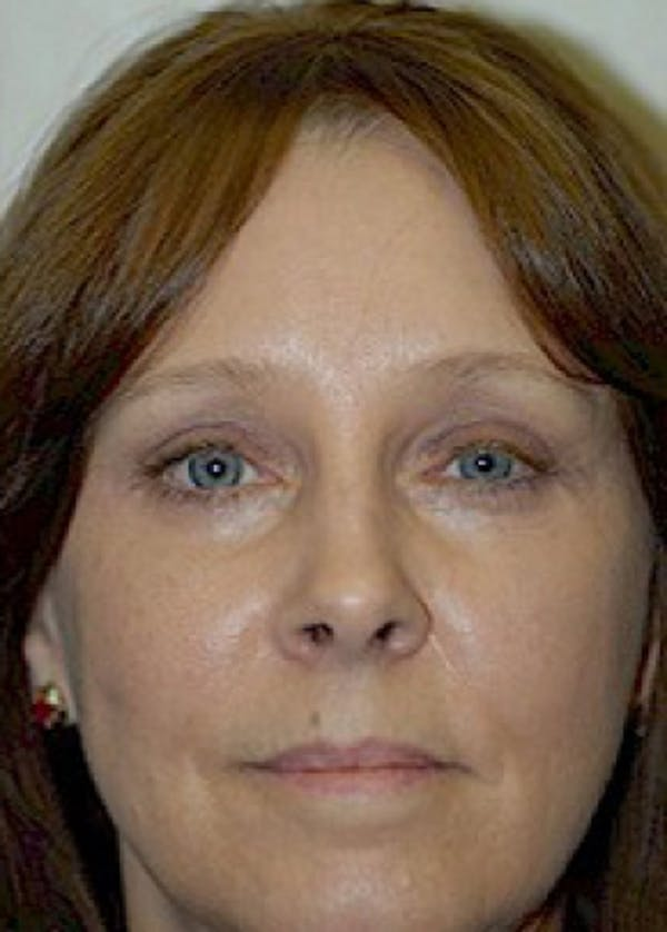 Eyelid Surgery Browlift Gallery - Patient 5952181 - Image 2