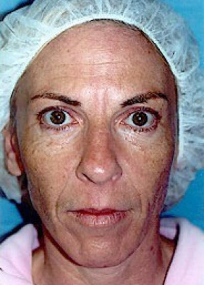 Laser Wrinkle Removal Gallery - Patient 5952182 - Image 8