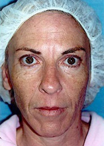 Laser Wrinkle Removal Gallery - Patient 5952182 - Image 2