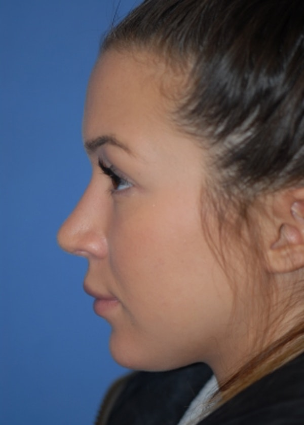 Rhinoplasty Gallery - Patient 5952183 - Image 6