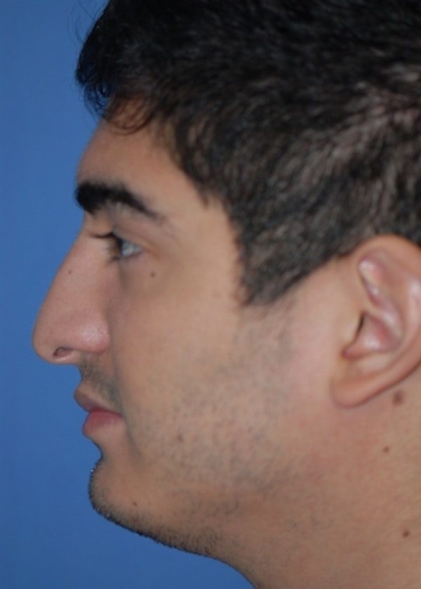 Rhinoplasty Gallery - Patient 5952187 - Image 1