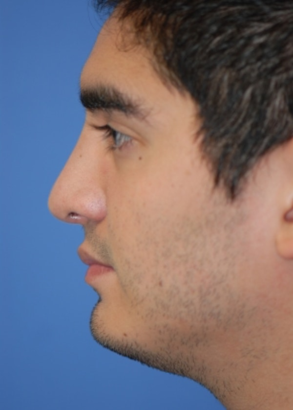 Rhinoplasty Gallery - Patient 5952187 - Image 2