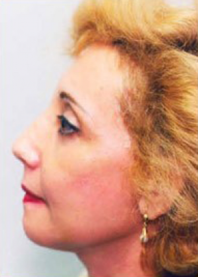 Facelift and Mini Facelift Gallery - Patient 5952188 - Image 2