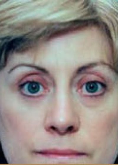 Eyelid Surgery Browlift Gallery - Patient 5952192 - Image 2