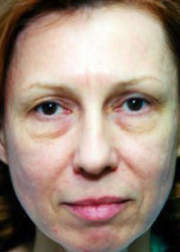 Eyelid Surgery Browlift Gallery - Patient 5952198 - Image 1