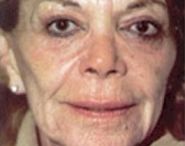 Laser Wrinkle Removal Gallery - Patient 5952197 - Image 1