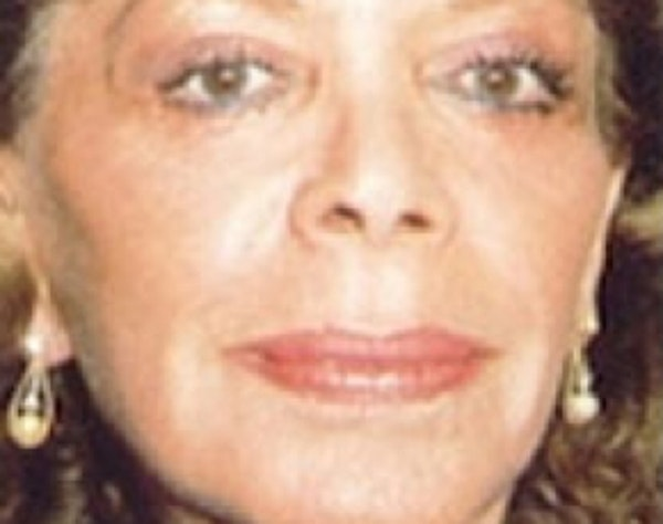 Laser Wrinkle Removal Gallery - Patient 5952197 - Image 2