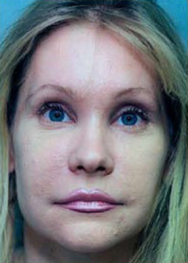 Eyelid Surgery Browlift Gallery - Patient 5952204 - Image 2
