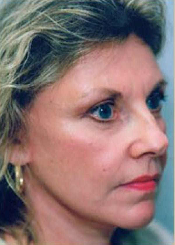 Facelift and Mini Facelift Gallery - Patient 5952205 - Image 2