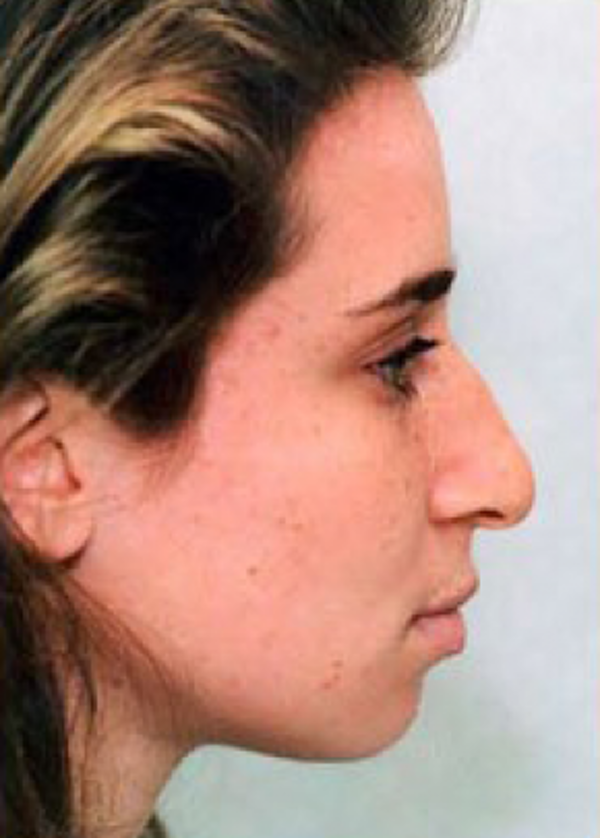 Rhinoplasty Gallery - Patient 5952208 - Image 1