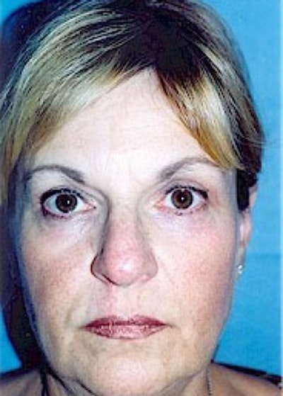 Eyelid Surgery Browlift Gallery - Patient 5952207 - Image 2