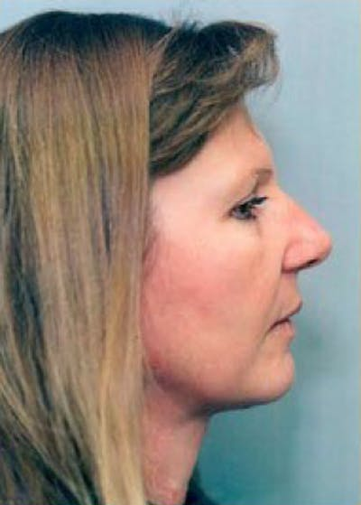 Facelift and Mini Facelift Gallery - Patient 5952212 - Image 2