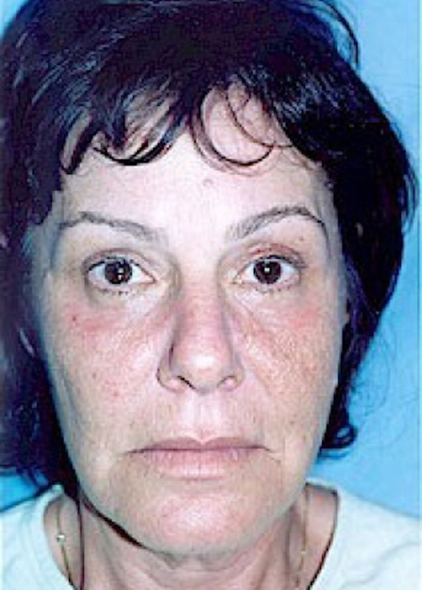 Eyelid Surgery Browlift Gallery - Patient 5952214 - Image 2