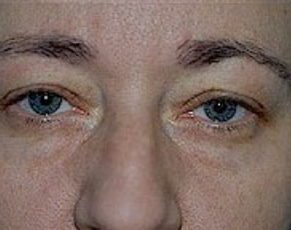 Eyelid Surgery Browlift Gallery - Patient 5952216 - Image 1