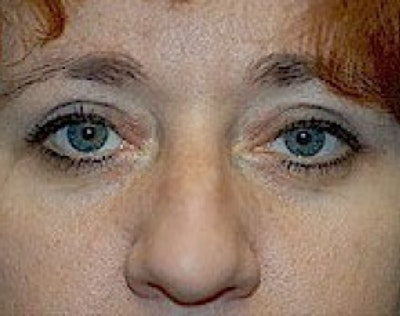 Eyelid Surgery Browlift Gallery - Patient 5952216 - Image 2