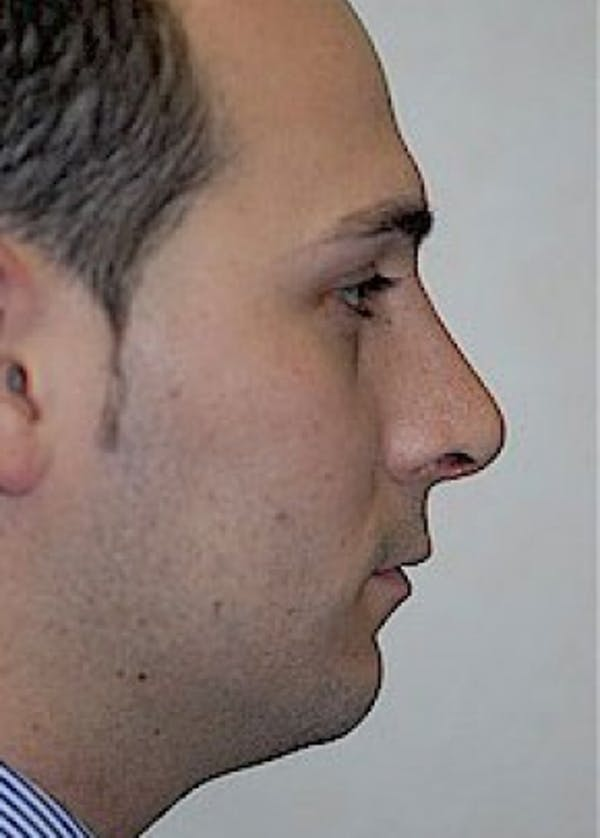Rhinoplasty Gallery - Patient 5952217 - Image 2