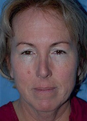 Facelift and Mini Facelift Gallery - Patient 5952224 - Image 1