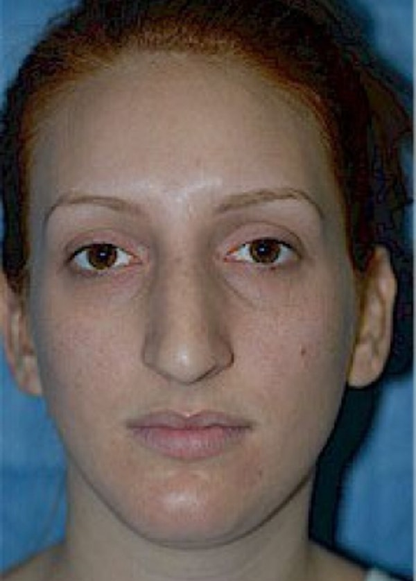 Rhinoplasty Gallery - Patient 5952225 - Image 1