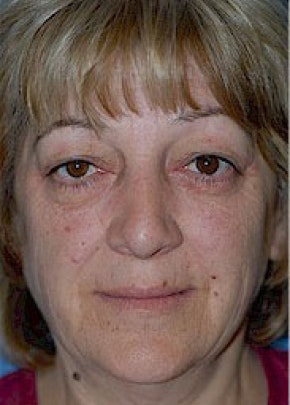 Facelift and Mini Facelift Gallery - Patient 5952228 - Image 1