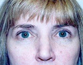 Eyelid Surgery Browlift Gallery - Patient 5952226 - Image 2