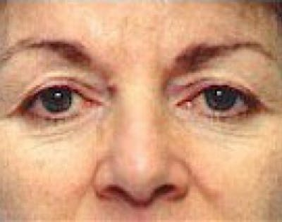Eyelid Surgery Browlift Gallery - Patient 5952227 - Image 1