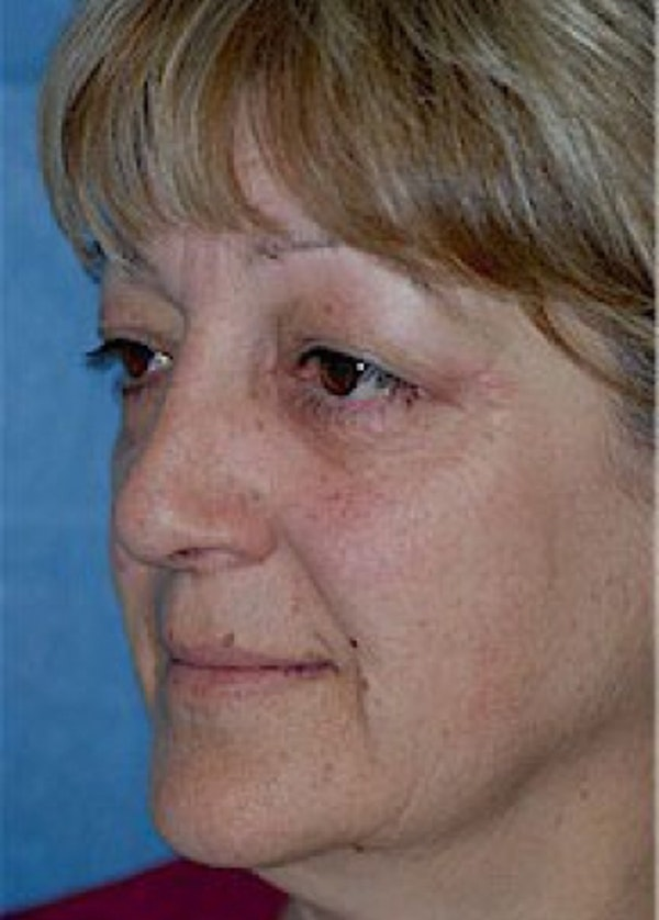 Facelift and Mini Facelift Gallery - Patient 5952228 - Image 5