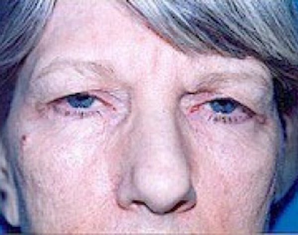 Eyelid Surgery Browlift Gallery - Patient 5952229 - Image 1