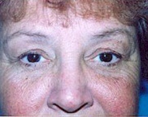 Eyelid Surgery Browlift Gallery - Patient 5952233 - Image 1