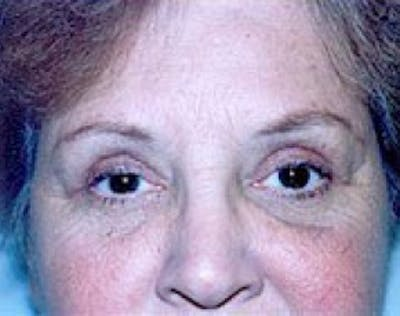 Eyelid Surgery Browlift Gallery - Patient 5952233 - Image 2